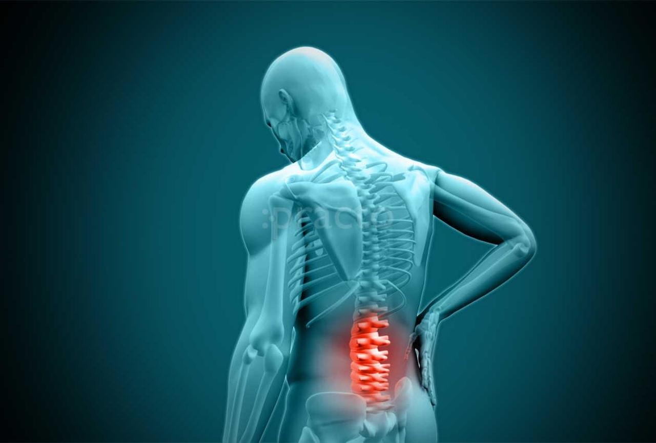 bel ağrısı fizik tedavi, fizik tedavi nedir