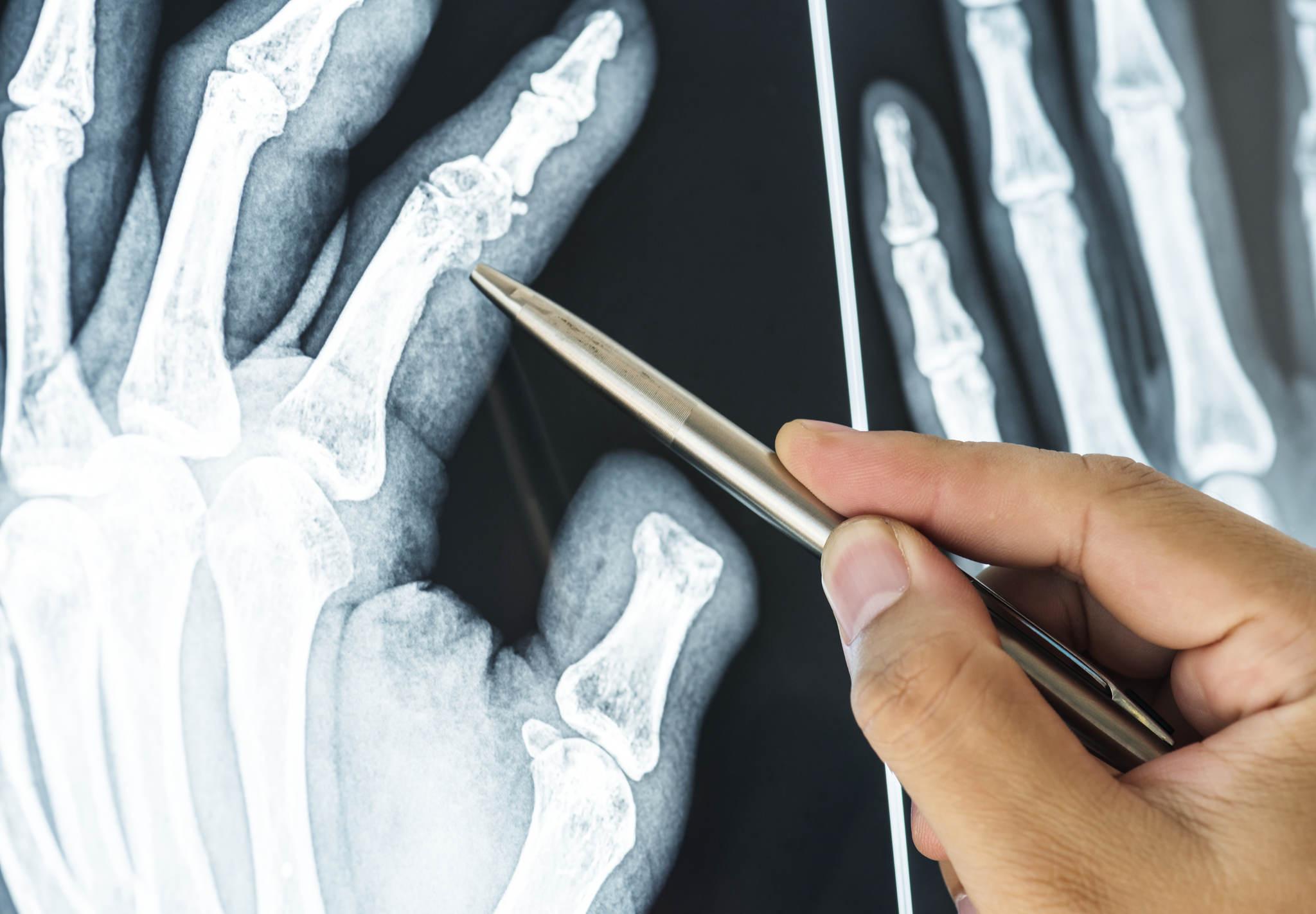 el röntgenini inceleyen doktor, romatizma ağrısı nasıl geçer