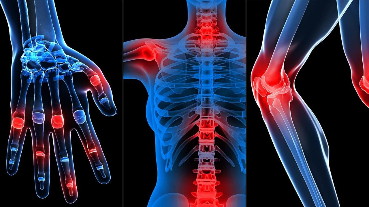 romatizma ağrısı nasıl geçer